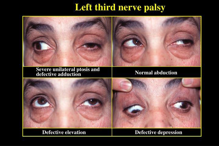Left third nerve palsy