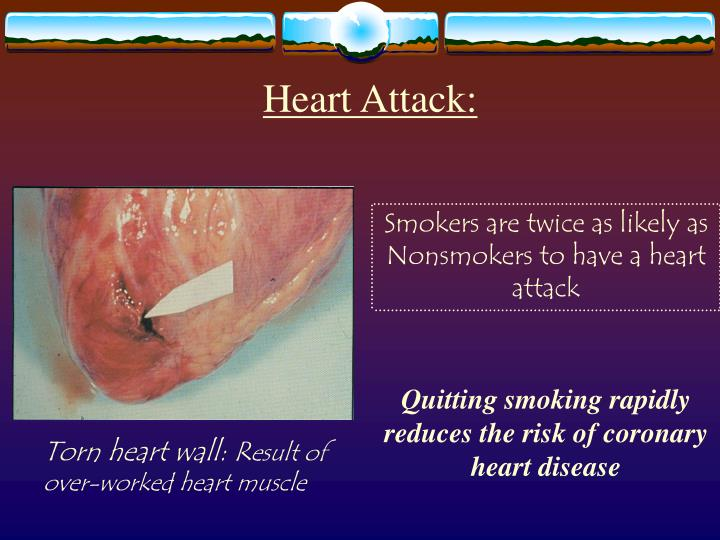 smoking kills more americans than any other diseases Tobacco use has predominantly negative effects on human health and concern about health effects of tobacco has a smoking most commonly leads to diseases affecting the heart and lungs and will most commonly smoking has therefore been studied more extensively than any other form of.
