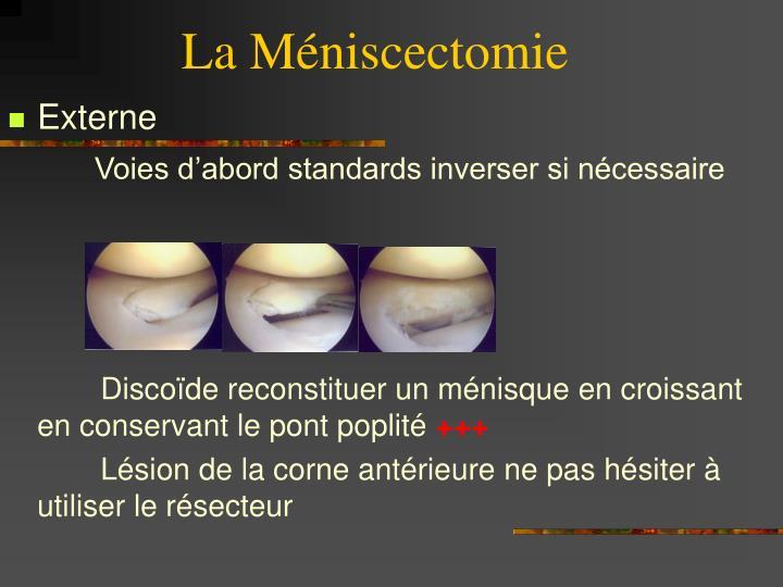 La Méniscectomie