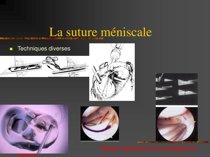 La suture méniscale