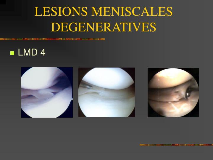 LESIONS MENISCALES DEGENERATIVES