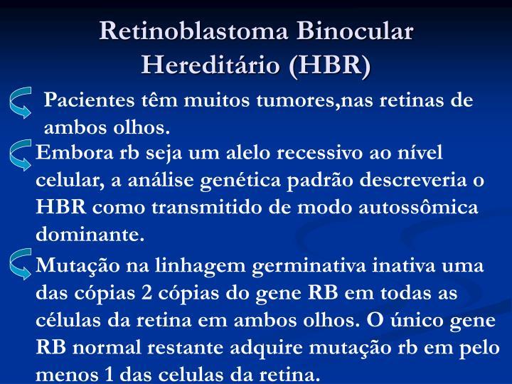 Retinoblastoma Binocular Hereditário (HBR)