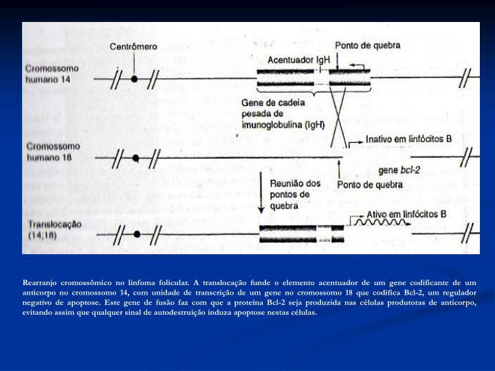 Rearranjo cromossômico no linfoma folicular. A translocação funde o elemento acentuador de um gene codificante de um anticorpo no cromossomo 14, com unidade de transcrição de um gene no cromossomo 18 que codifica Bcl-2, um regulador negativo de apoptose. Este gene de fusão faz com que a proteína Bcl-2 seja produzida nas células produtoras de anticorpo, evitando assim que qualquer sinal de autodestruição induza apoptose nestas células.