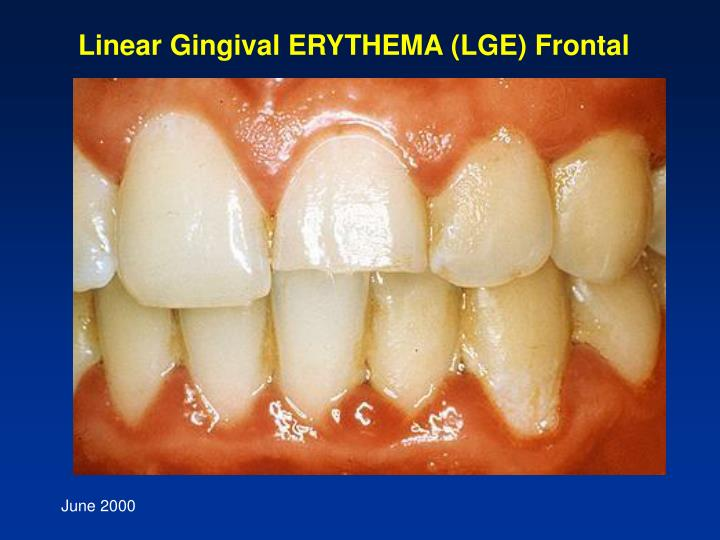 Linear Gingival ERYTHEMA (LGE) Frontal