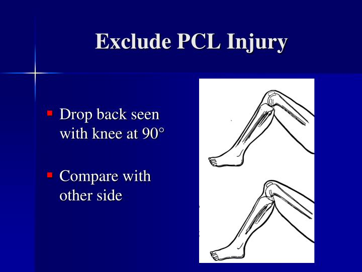 Exclude PCL Injury