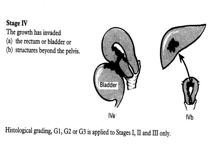 Carcinoma of the Endometrium
