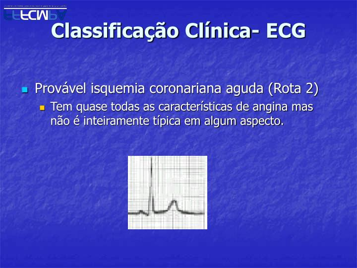 Classificação Clínica- ECG