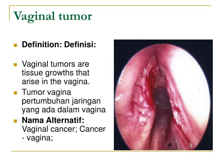 Vaginal tumor