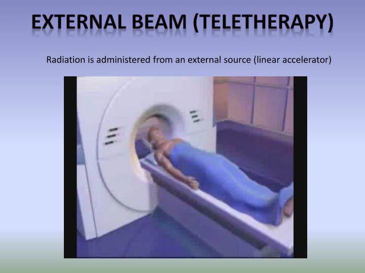 External beam (