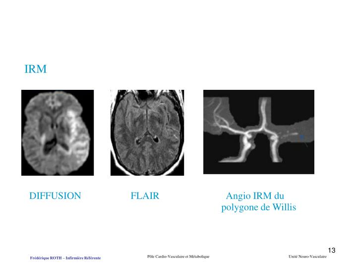 DIFFUSION                    FLAIR                           Angio IRM du