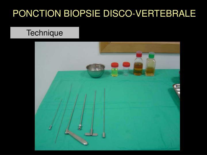 PONCTION BIOPSIE DISCO-VERTEBRALE
