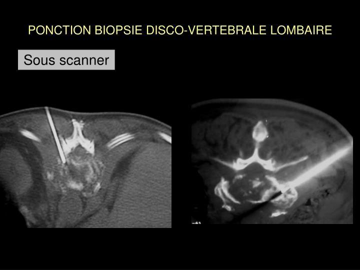 PONCTION BIOPSIE DISCO-VERTEBRALE LOMBAIRE
