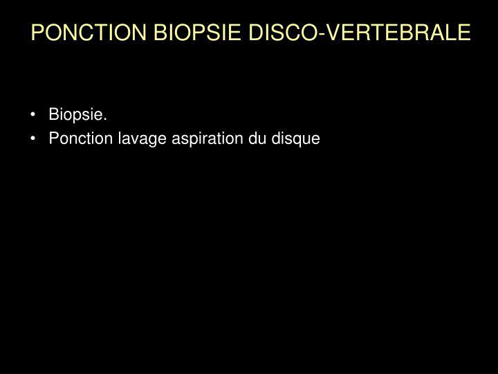 Biopsie.