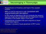 neuroimaging in fibromyalgia
