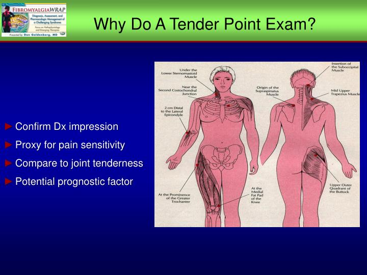 Why Do A Tender Point Exam?