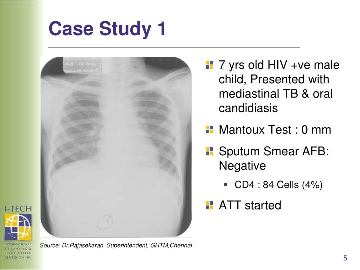 hesi case study hiv tb Hesi study guide for nclex  hiv are standard precautions  william's position amulet or any other use of protective charms around their baby's neck to avoid.