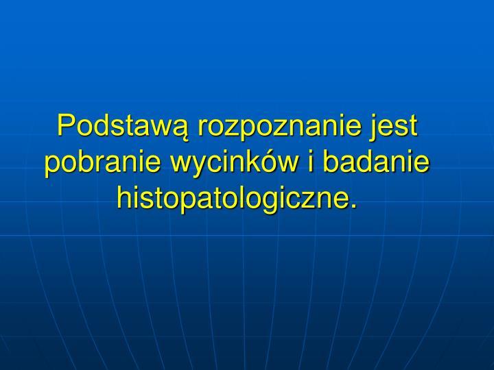 Podstaw rozpoznanie jest pobranie wycinkw i badanie histopatologiczne.