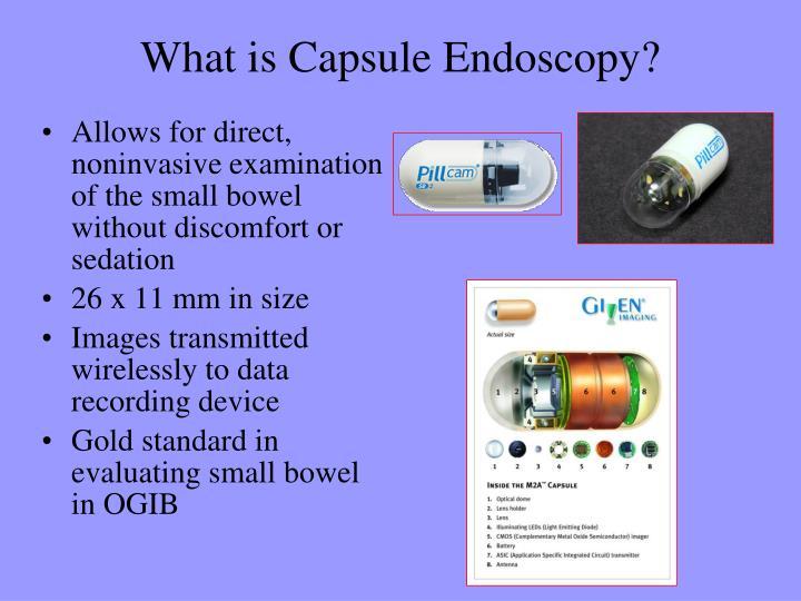 What is Capsule Endoscopy?