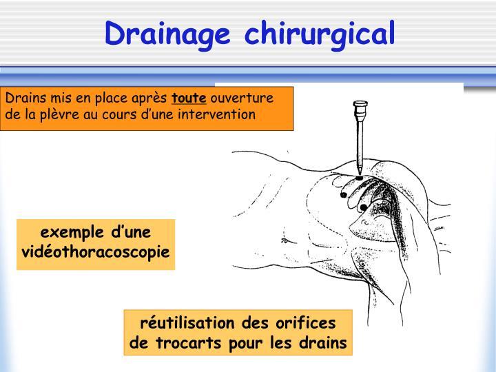PPT - LE DRAINAGE PLEURAL PowerPoint Presentation - ID:1273619