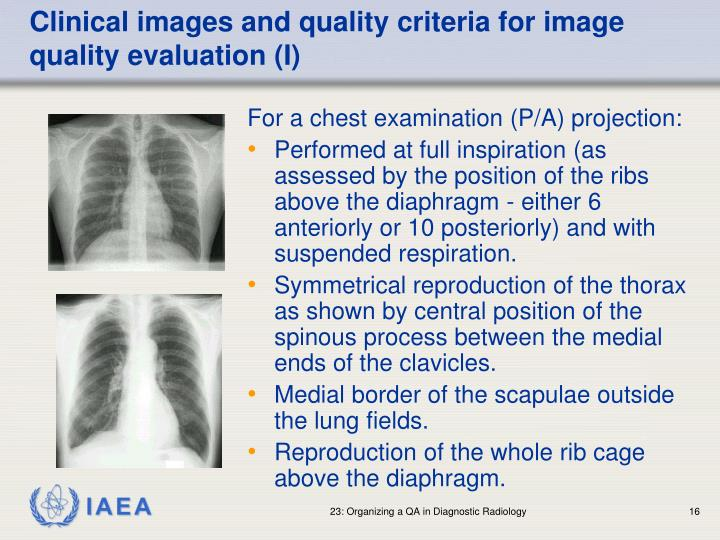 Clinical images and quality criteria for image quality evaluation (I)