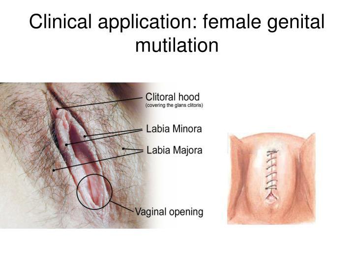 Clinical application: female genital mutilation