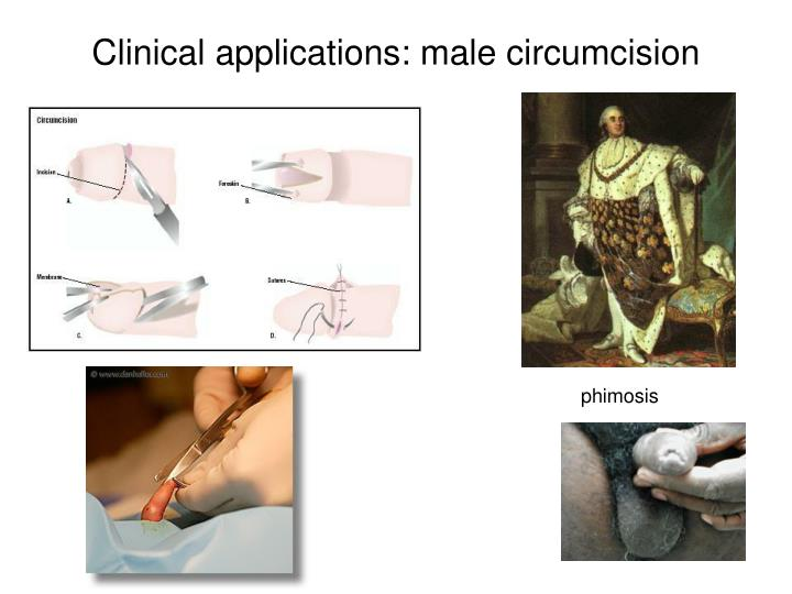 Clinical applications: male circumcision