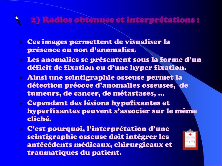 2) Radios obtenues et interprétations :