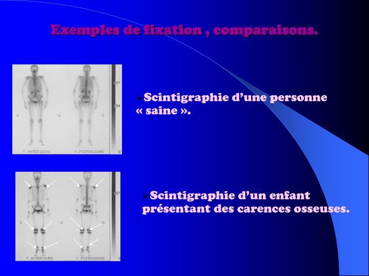 Exemples de fixation , comparaisons.