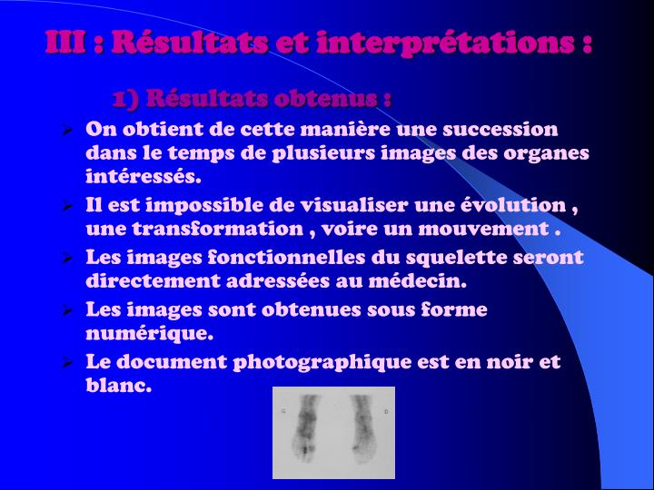III : Résultats et interprétations :