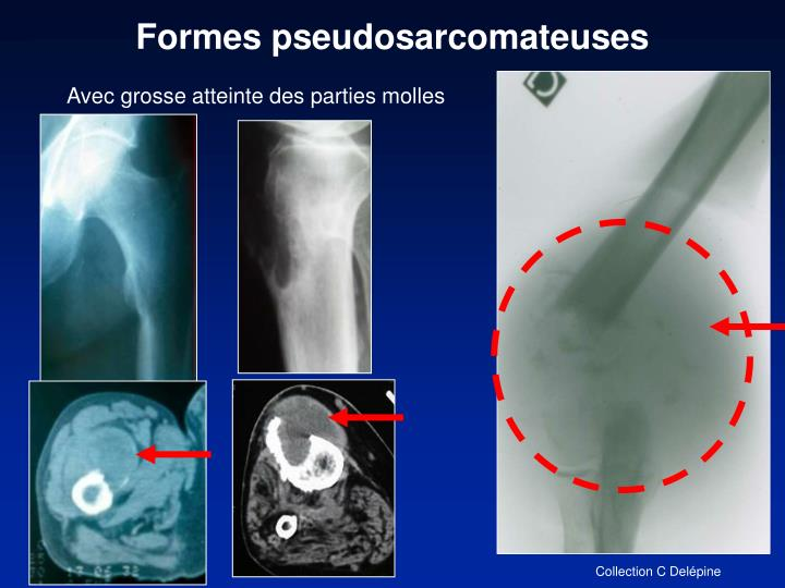 Formes pseudosarcomateuses