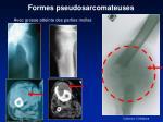 formes pseudosarcomateuses
