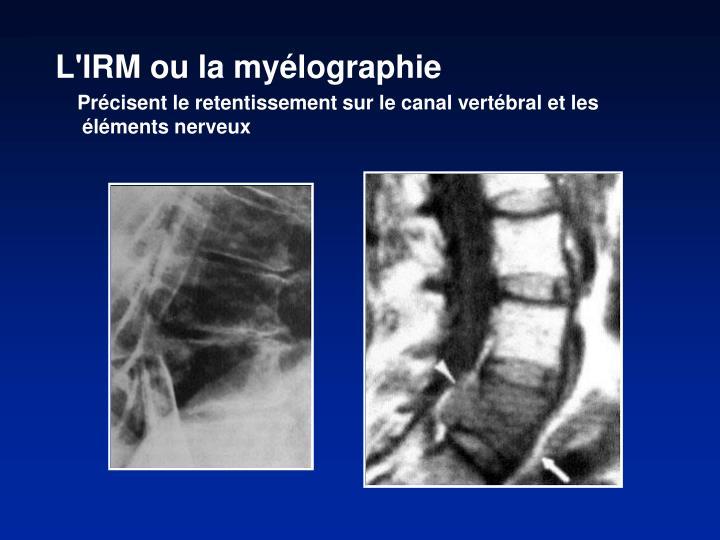 L'IRM ou la myélographie