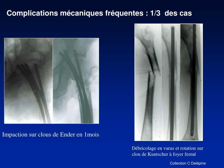 Complications mécaniques fréquentes : 1/3  des cas
