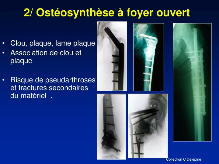2/ Ostéosynthèse à foyer ouvert