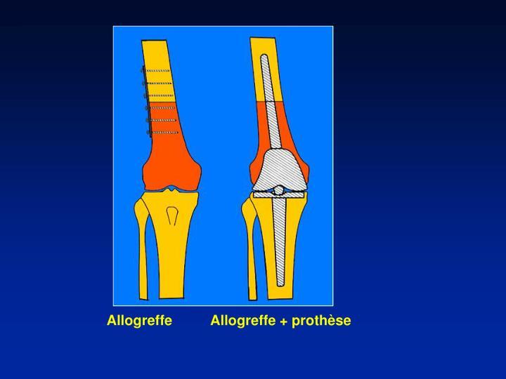 Allogreffe          Allogreffe + prothèse