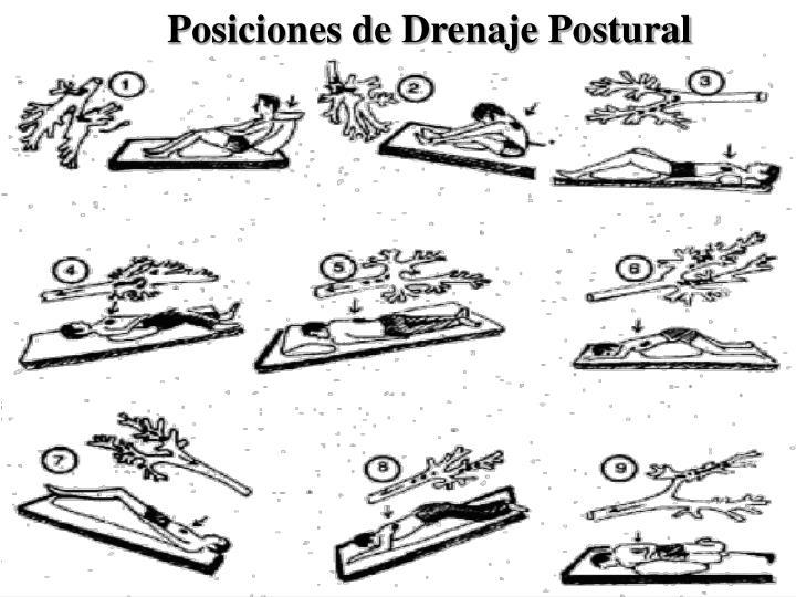 Posiciones de Drenaje Postural
