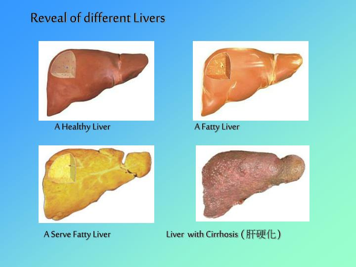 Reveal of different Livers