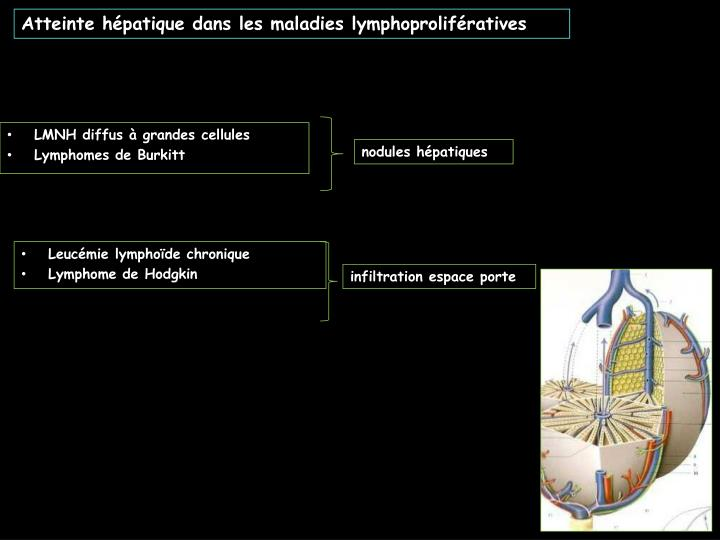 Atteinte hépatique dans les maladies lymphoprolifératives