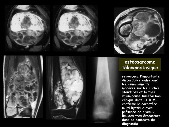 ostéosarcome télangiectasique