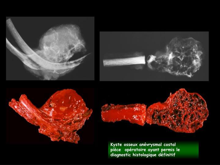 Kyste osseux anévrysmal costal