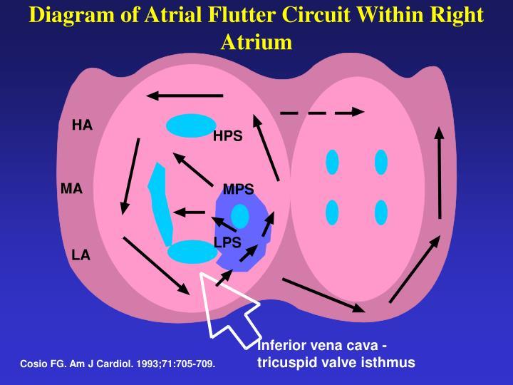 Diagram of Atrial Flutter Circuit Within Right Atrium