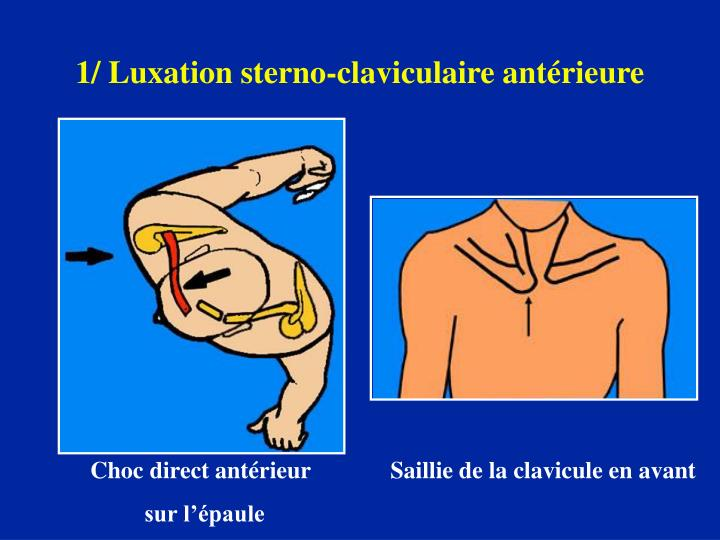 1/ Luxation sterno-claviculaire antérieure