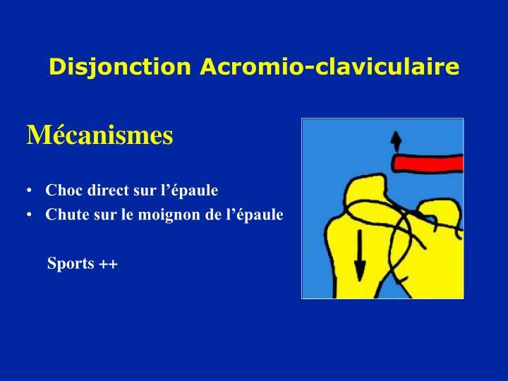 Disjonction Acromio-claviculaire