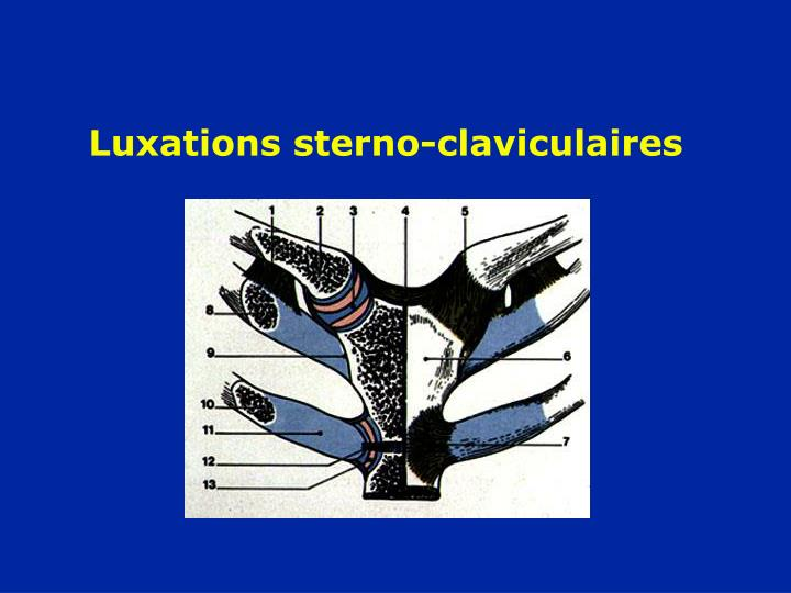 Luxations sterno-claviculaires