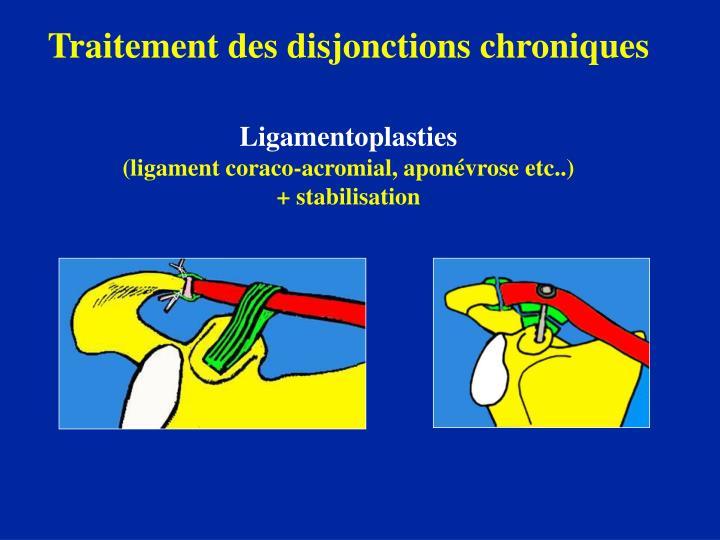 Traitement des disjonctions chroniques