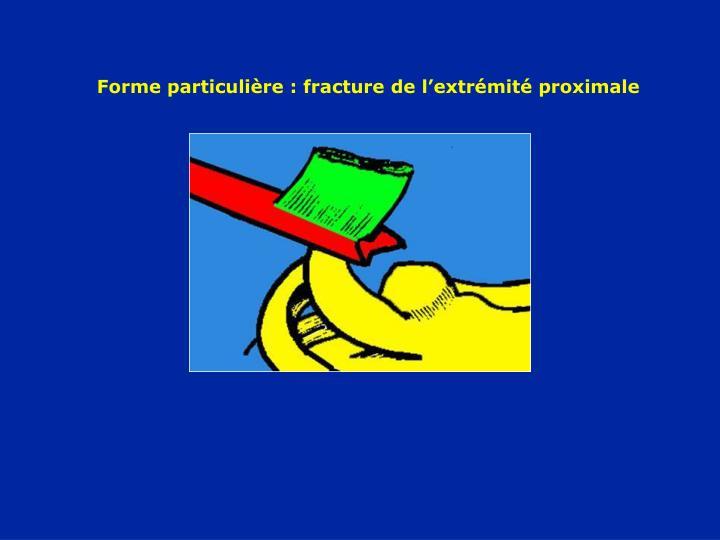 Forme particulière : fracture de l'extrémité proximale