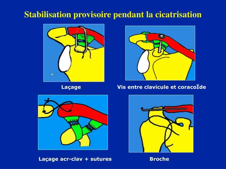 Stabilisation provisoire pendant la cicatrisation