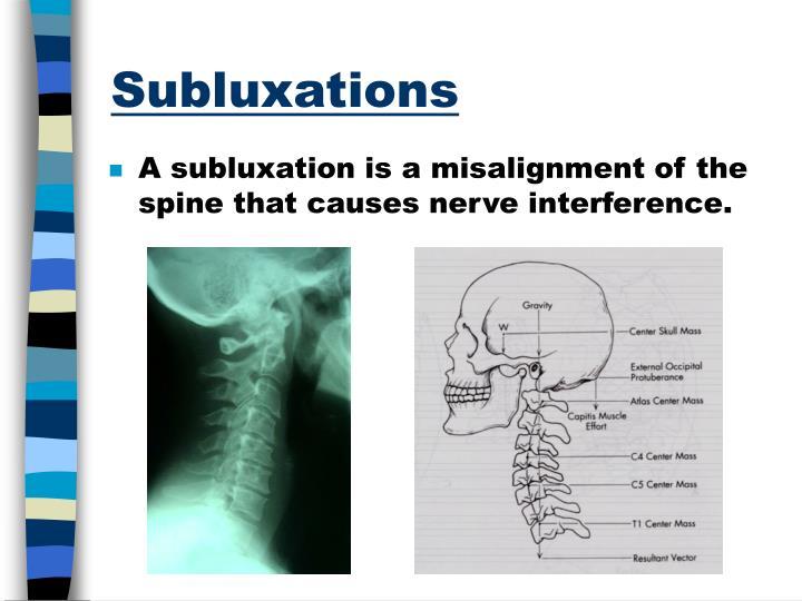 Subluxations