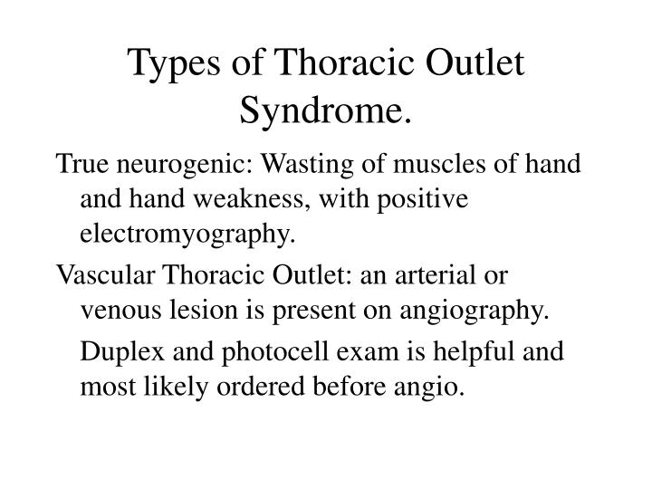 Types of Thoracic Outlet Syndrome.