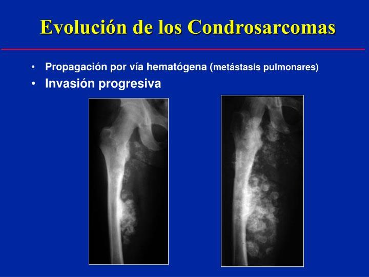 Evolución de los Condrosarcomas
